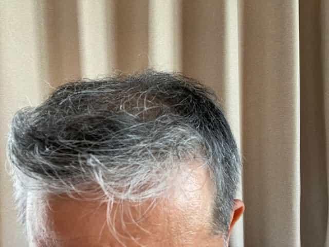 薄毛 髪型 横分け