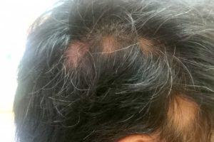円形脱毛症 治る