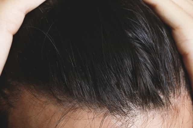 髪 全体 何本