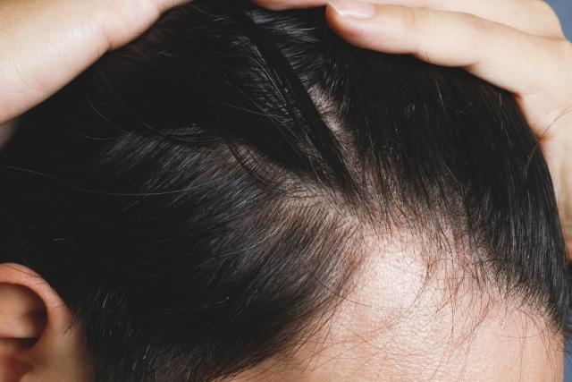 M字ハゲ 産毛